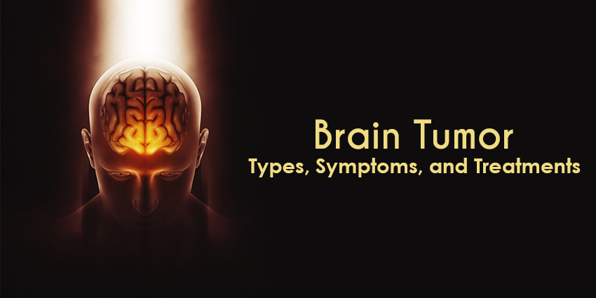 Brain Tumor Types categorized , Symptoms, and Treatments